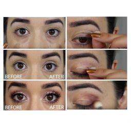 Inspire uplift anti aging eyelid tape anti aging eyelid tape 2626144567412_1000x.jpg